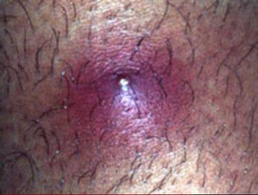MRSA Methicillin-resistant Staphylococcus aureus